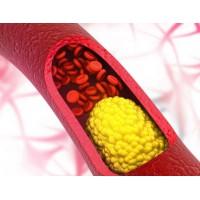 Семь простых способов снизить уровень холестерина.