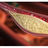 Регулярная физическая активность помогает предотвратить или уменьшить жесткость артерий.
