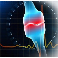 25 заболеваний, связанное с потерей костной массы и остеопорозом.